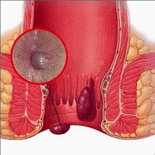 αιμοροΐδες