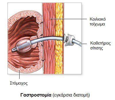 gastrostomia1