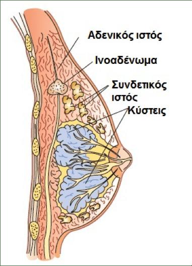 ινοαδένωμα μαστού
