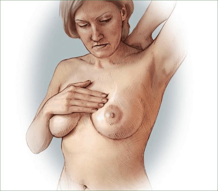 mastodynia
