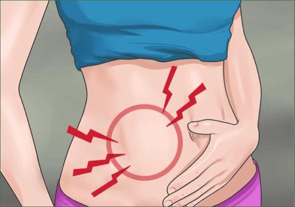 οξεία σκωληκοειδίτιδα